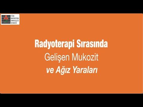Radyoterapi Sırasında Gelişen Mukozit ve Ağız Yaraları - Prof. Dr. Maksut Görkem AKSU